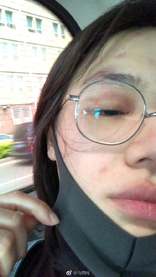 马思纯患疱疹,整张脸红肿到认不出!