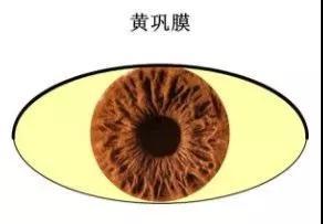 当你的眼睛出现这5大症状,快去查查自己的肝脏吧!