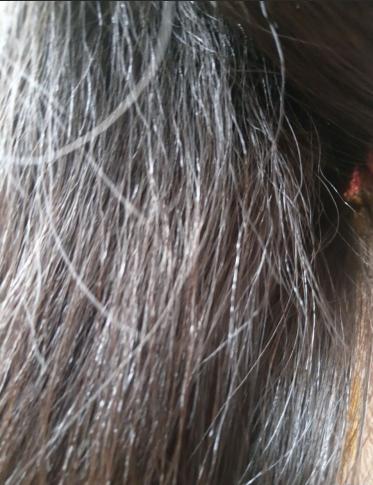 三岁宝宝头发粗糙,感觉受损很?#29616;兀?#36825;应该看什么科?