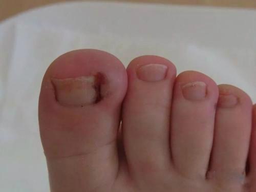 小孩脚趾甲长到肉里去了,该怎么办?